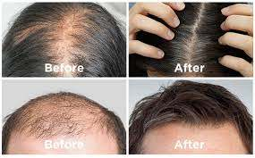 hair revital x User Results