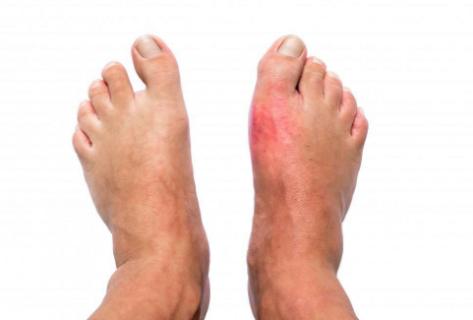 The End Of GOUT Program Masterclass