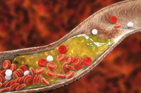 The Oxidized Cholesterol Strategy Program - How to Manage Cholesterol Level?