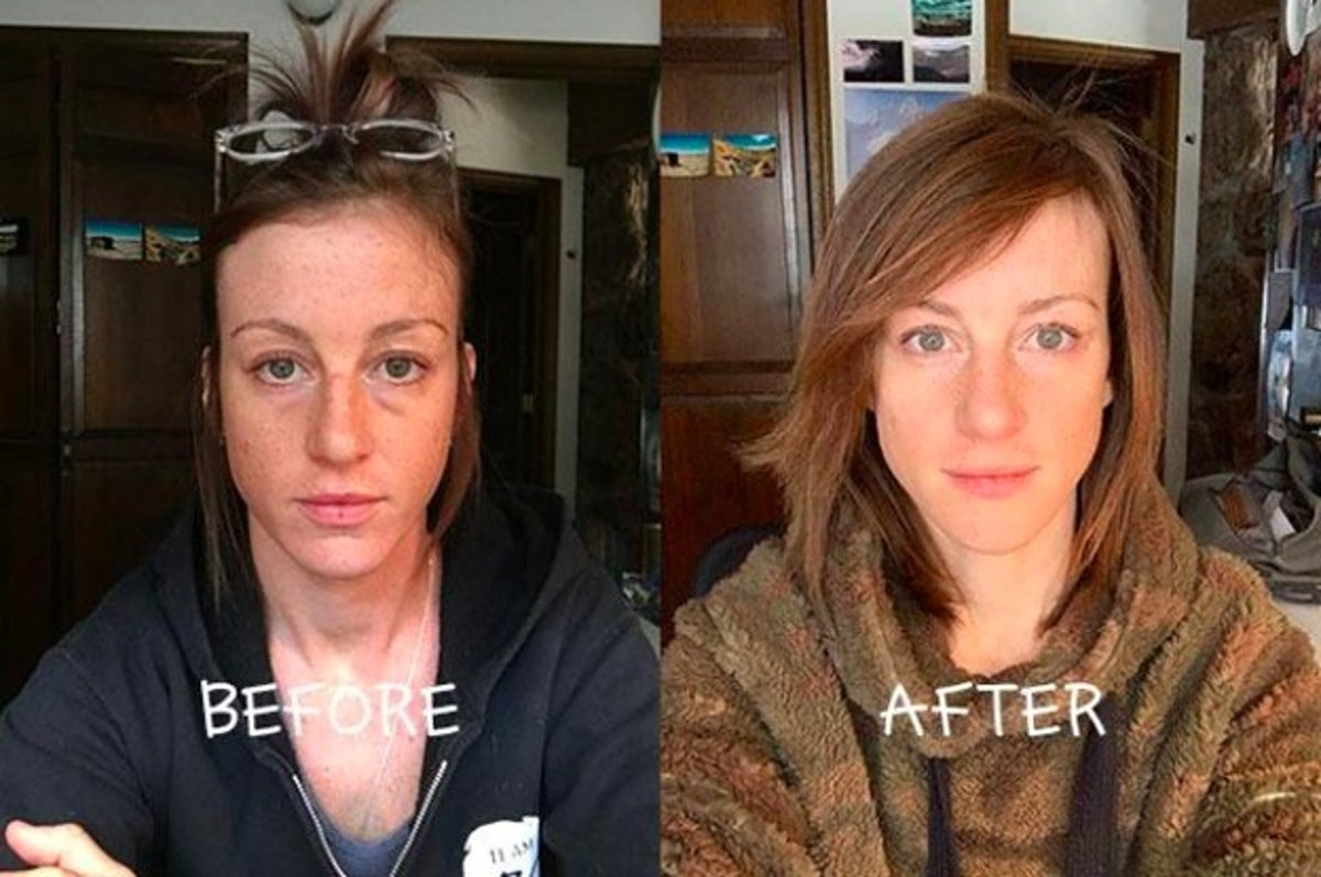 Del Mar CeraLift Before & after results